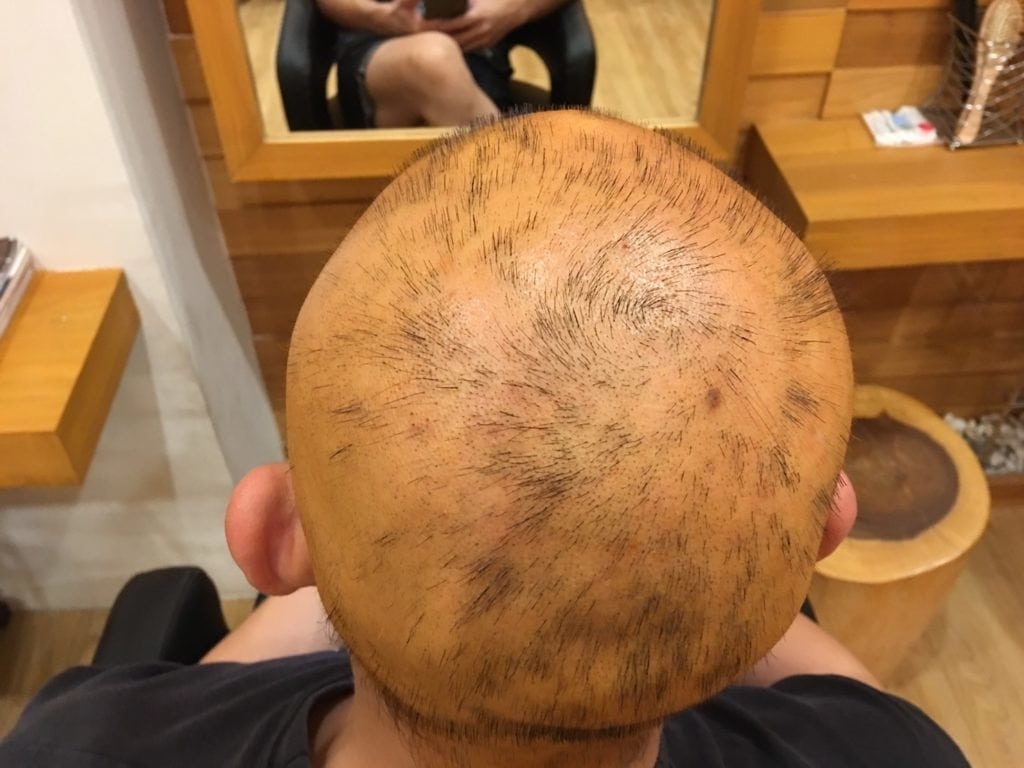 Hair loss due to chemical burns on scalp