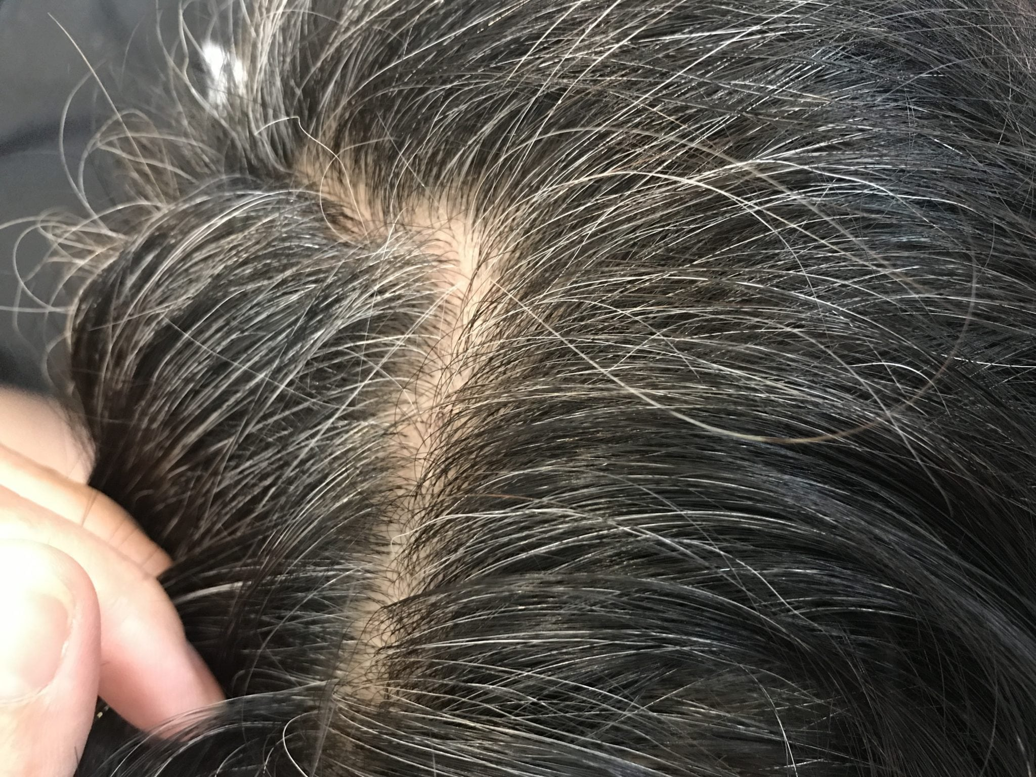 Greying of hair due to age