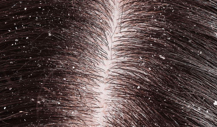 Why is my scalp dry and how to combat it?