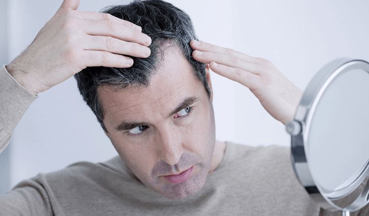 HOW DOES A MAN KNOWS HE IS SUFFERING FROM HAIR LOSS?