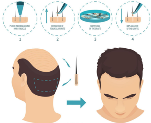 How does FUE hair transplantation work