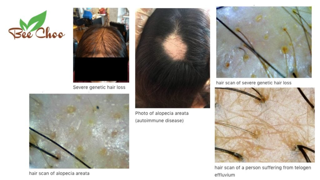 5 CAUSES OF HAIR LOSS AND WHERE TO FIND HAIR TREATMENT IN THAILAND
