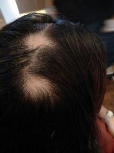 Hair loss from auto immune disease