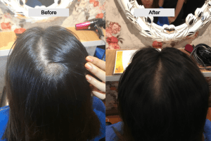 Before after recovery from sensitive scalp